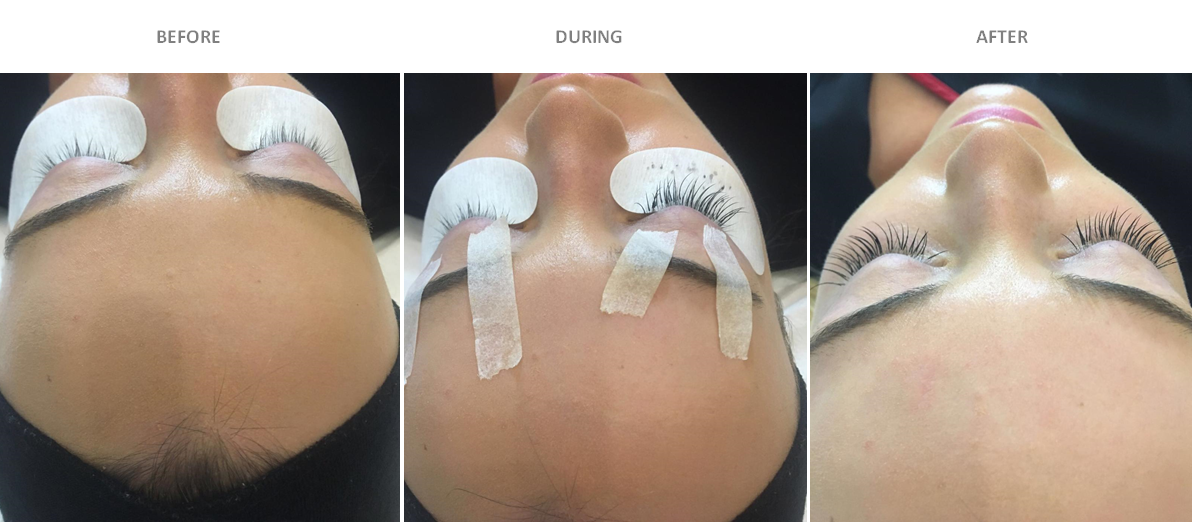Dulwich Laser Lash Perfect Before and After