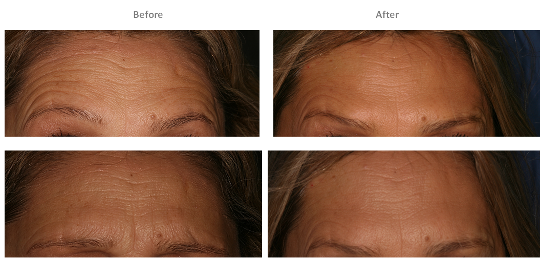 Dulwich Laser Botox and Filler